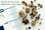 Magnesium For Kidney Stones